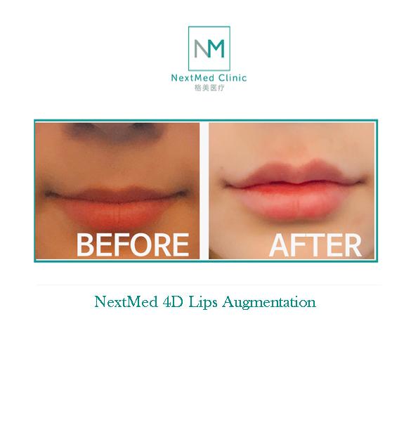 Lips Aug 2