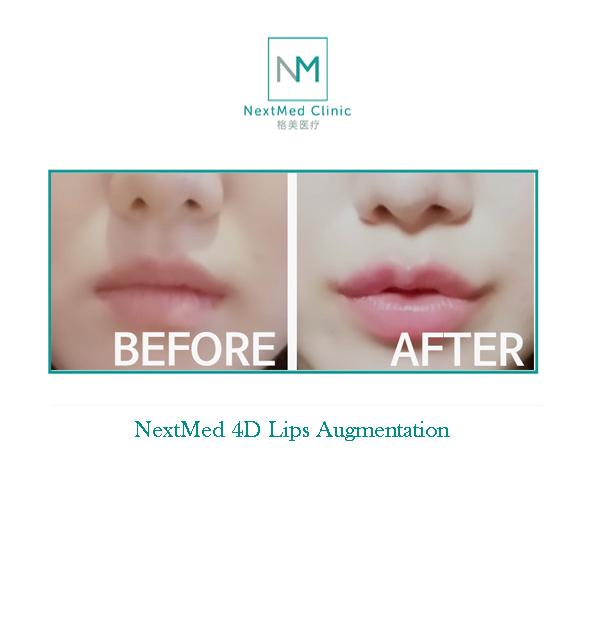 Lips Aug 3