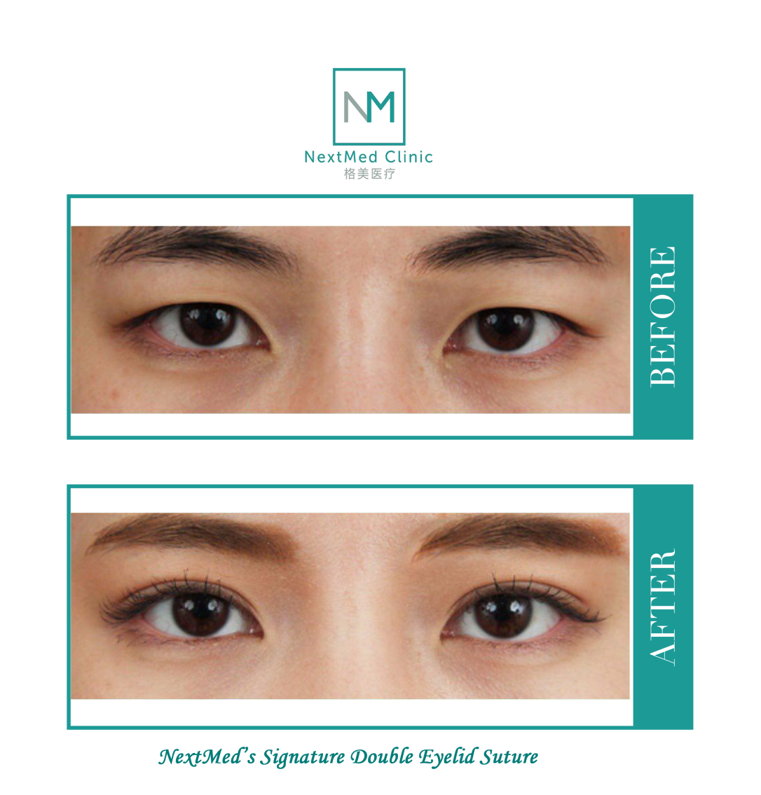 9 Frequently Asked Questions about Asian Eyelid Surgery
