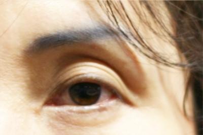 sunken eye