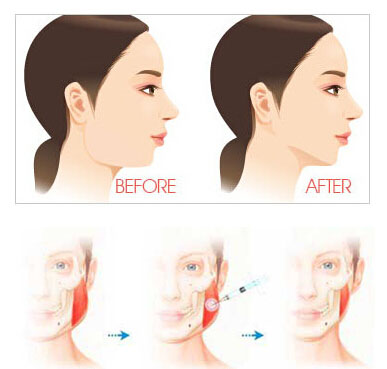 Botox vshape-model