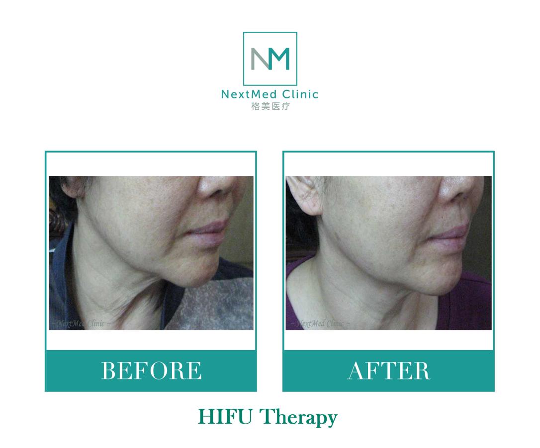 hifu 5 - watermark