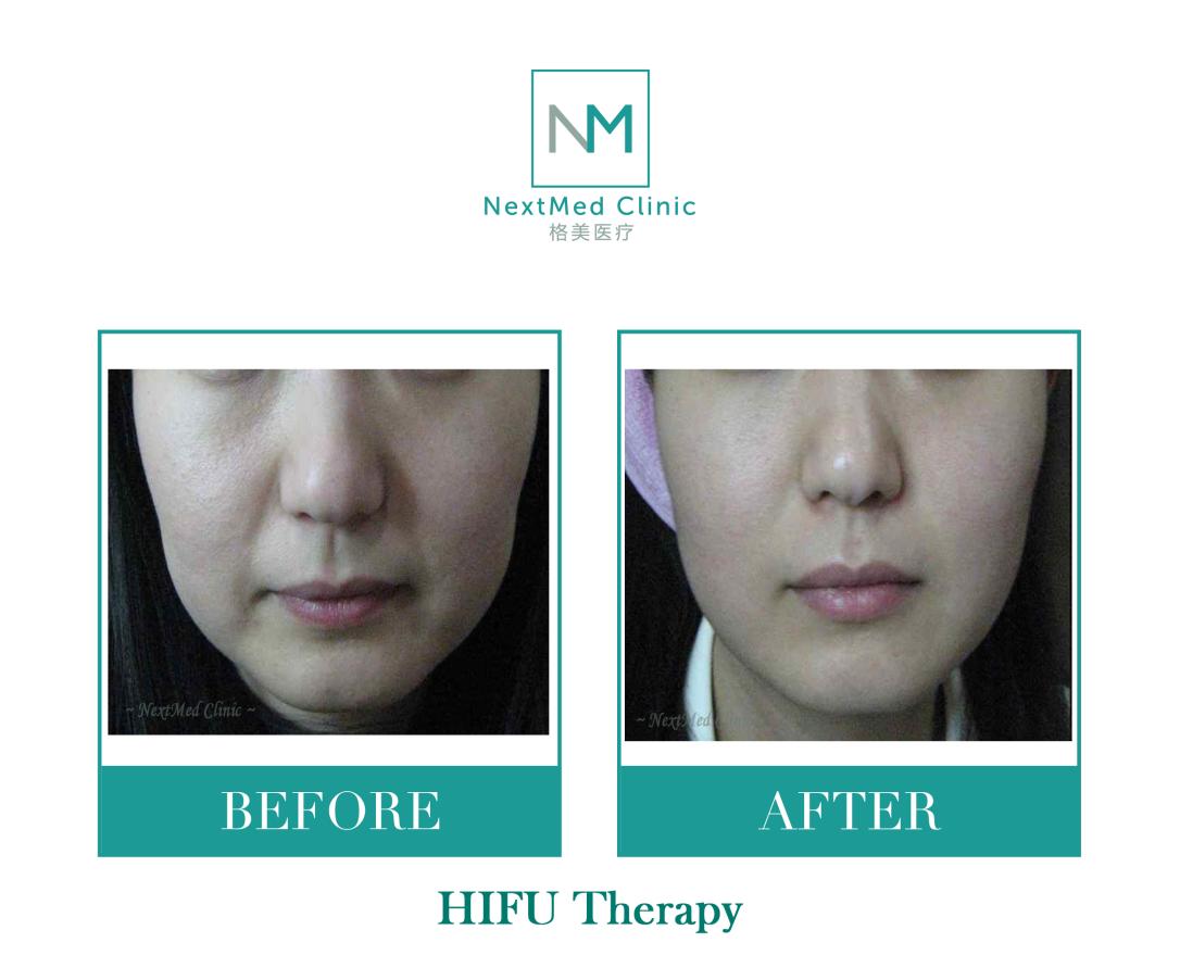 Hifu therapy 2 -water