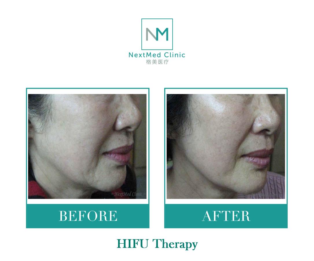 HIFU Therapy watermark