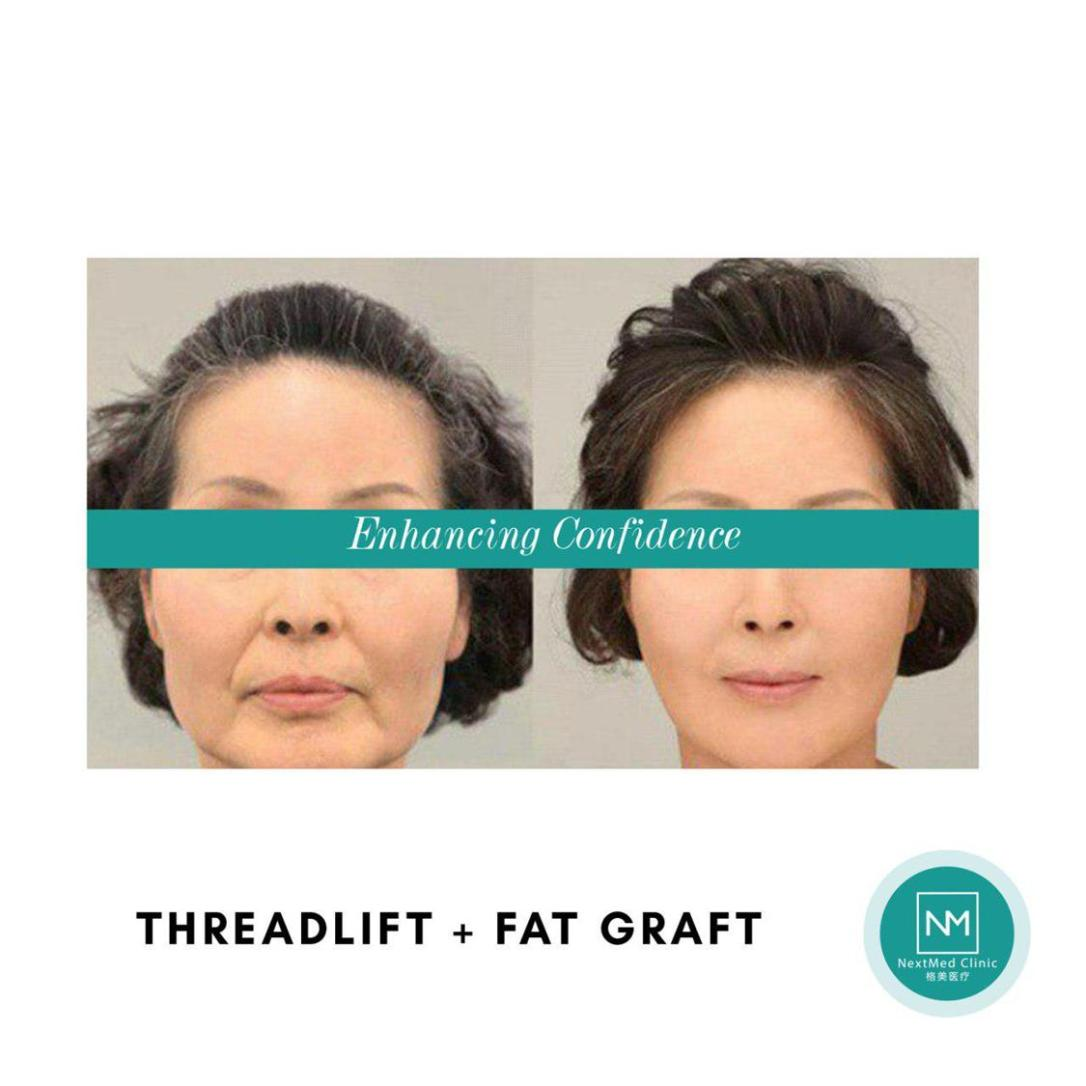 threadlift and fat graft